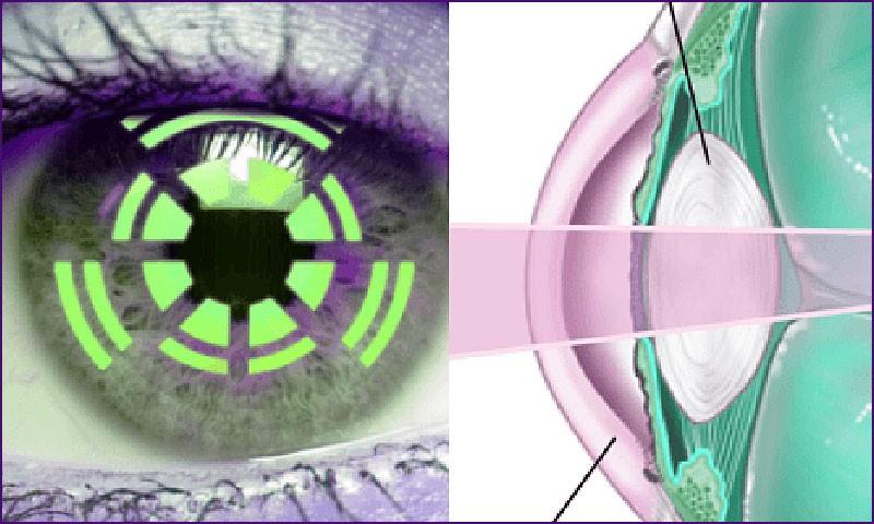 Искусственные хрусталики при катаракте